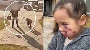 <b>Dog</b> involved in attacking 3-year-old girl in Old Town <b>Spring</b> is now ...