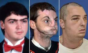 Richard Norris is seen before and after his face transplant operation. Norris of Hillsville, Virginia, was shot in the face in 1997. Photograph: Reuters