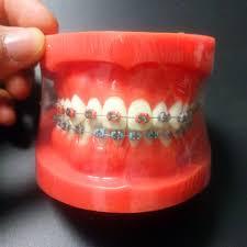 <b>Orthodontic Dental</b> Typodont <b>Teeth Model with</b> Fully Metal Bracket ...