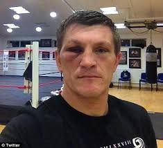 Battered and bruised: Ricky Hatton was beaten by Vyacheslav Senchenko. And he tweeted a photo of himself in his gym with the tagline: 'If I'm not sick of ... - article-0-163926B8000005DC-453_468x426