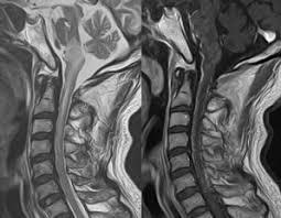 「頚髄損傷と解剖生理」の画像検索結果