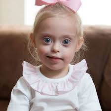 Image result for DOWN'S SYNDROME ILLUSTRATION