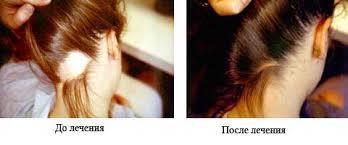 Волосы пропеция отзывы