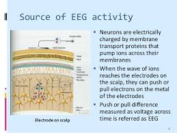 Image result for electroencephalography (eeg)