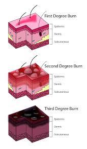 burn injury simple english the encyclopedia burn degree diagram svg