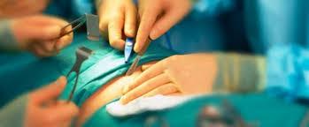 Αποτέλεσμα εικόνας για γιατρός χειρουργείο