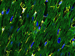 Single-cell <b>map of the heart</b> reveals wide cellular diversity   Broad ...