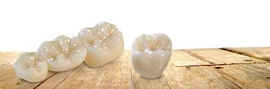 Image result for ultra translucent zirconia crown