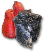 Image result for images of smokers lungs
