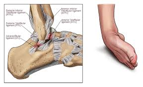 ssor physical therapy archives ssor physical therapy rolled ankle note the difference in the injured anatomy it s not as