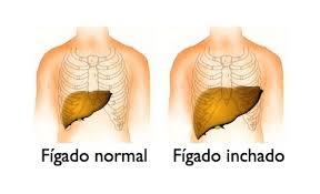 Resultado de imagem para foto do figado com hepatite B