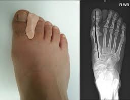 Designing Personalized <b>Toe</b> Spreaders for <b>Hallux Valgus</b> with Three ...