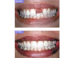 Before and After Patient photo of missing top front tooth and dental implant replacement