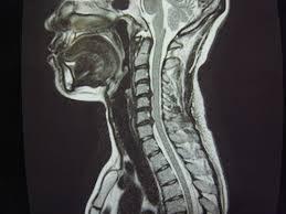 「頚髄損傷と発生原因」の画像検索結果