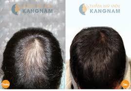 """""""Kinh nghiệm"""" chăm sóc tóc rụng hiệu quả 3"""