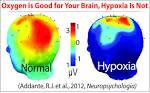 hypoxia, brain