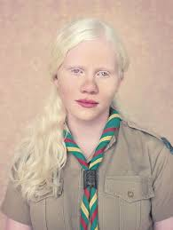 albinos a beautiful photo essay of people with albinism albinos is a beautiful photo essay of people with albinism started in  by brazilian photographer gustavo lacerda using muted colors and soft lights to