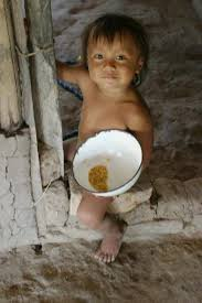 Resultado de imagem para crianças desnutridas
