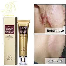 Buy <b>LanBeNa Acne</b> Scar Mark <b>Removal</b> Gel Ointment, 30g (1.05oz ...
