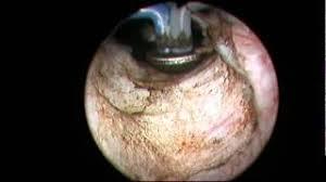 Resultado de imagem para vaporização da próstata