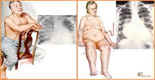 Resultat d'imatges de insuficiencia cardiaca