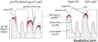 اسباب التهابات علاجها