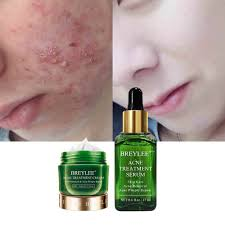 <b>BREYLEE Tea Tree</b> Acne Treatment Acne Solution Kit | Shopee ...