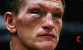 Ricky Hatton was better than many at boxing and sidestepping the truth, until after the defeat by Vyacheslav Senchenko. Photograph: Andrew Couldridge/Action ... - Ricky-Hatton-v-Vyacheslav-008