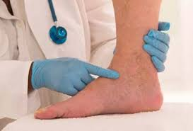 Image result for foot skin build up around ankles