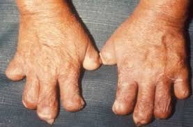 Image result for picture of leprosy