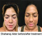 New <b>Treatment</b> Could Be 'Breakthrough' for Vitiligo