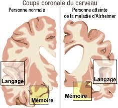 Résultats de recherche d'images pour «recherche maladie alzheimer»