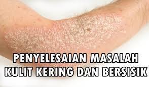 Hasil carian imej untuk masalah kulit kering