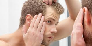 How too identify and stop <b>hair loss</b> - Insider