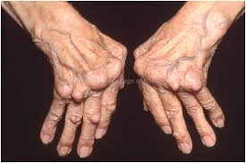 Image result for pics of arthritis patient