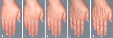 Image result for skin boosters, hands