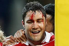 James Horwill, Lions, Brad Barritt Brad Barritt bleeds from a head wound in Melbourne. Horwill was cleared at a disciplinary hearing of stamping on Alun Wyn ... - 2910