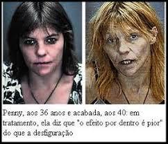 Resultado de imagem para usuário de crack antes e depois