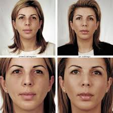 Ordon Beauty Center - lek. med. Małgorzata Ordon - 568554