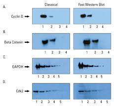 Image result for western blotting