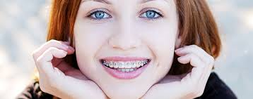 Image result for braces