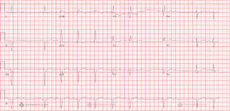 lead hb a png this example below has what is called 2 1 block every other p wave is blocked therefore it is impossible to determine if the pr interval is increasing or