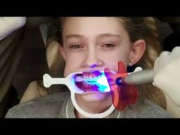 Image result for gambar braces gigi