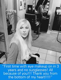 client testimonials blepharoplasty beverly hills and eyelid for the first time makeup on in 3 years and no sunglasses all because of you thank you from the bottom of my heart