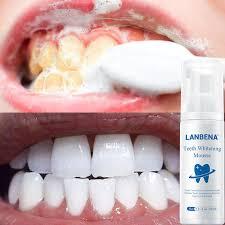 LANBENA <b>Fresh Shining Tooth</b>-<b>Cleaning</b> Mousse <b>Toothpaste</b> Teeth ...
