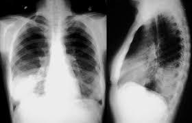 pengobatan pneumonia