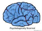 psychologically