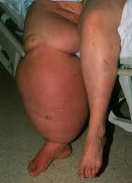 Image result for elephantiasis patient