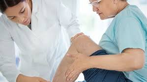 Expert advice on <b>varicose vein</b> prevention and <b>treatment</b> - UChicago ...