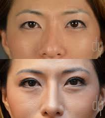 beverly hills rhinoplasty specialist dr donald yoo performed a beverly hills rhinoplasty specialist dr donald yoo performed a primary asian rhinoplasty and upper blepharoplasty